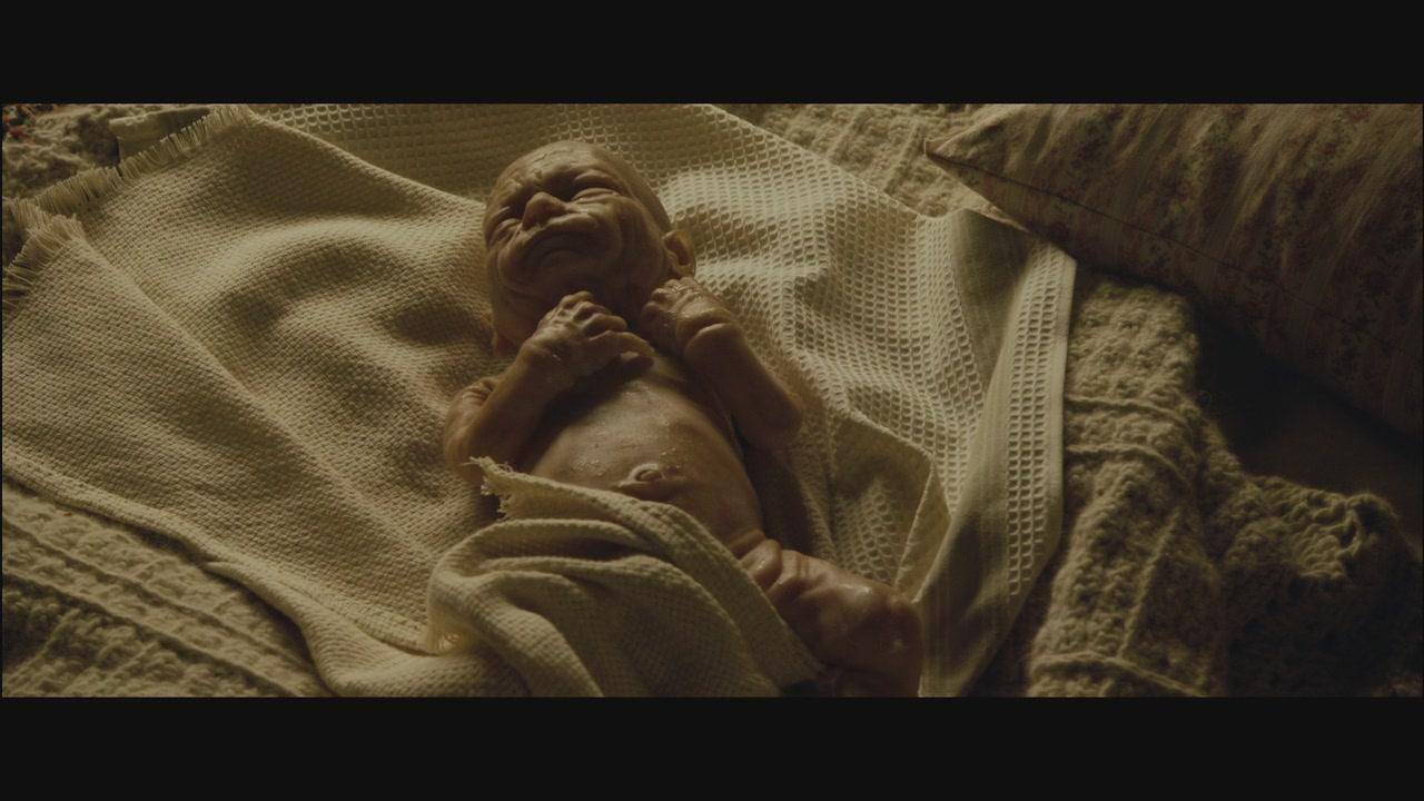 Benjamin Button Baby