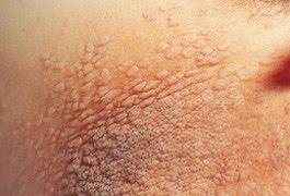 Natural Way of Living: Natural Remedy for Warts