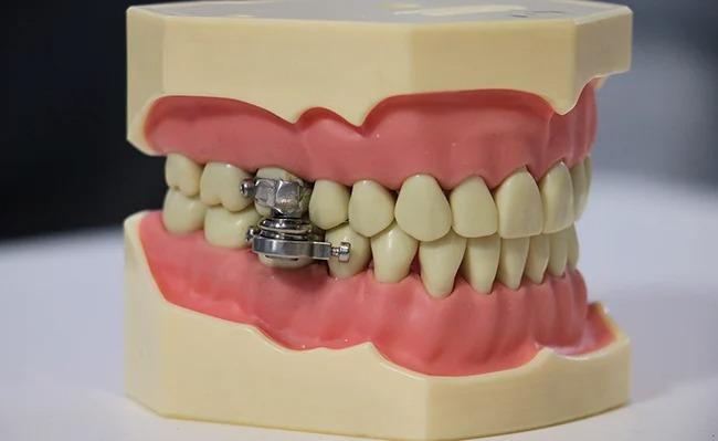 Inventan un polémico dispositivo que te cierra la mandíbula para que no comas y bajes de peso