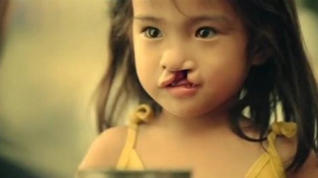 Bocah Ini Dulu di Buang Orang Tuanya Karena Bibirnya Sumbing, Saat Dewasa ia Menjadi Sangat Cantik