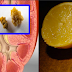 Simple Way On How To Flush Out Kidney Stones Using Lemons