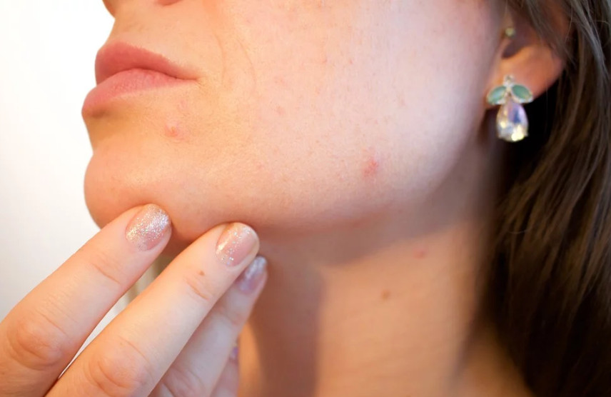 6 Ways To Stay Acne Free This Winter