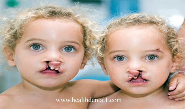 اسباب الشفة الارنبية عند الاطفال وكيف نعالجها
