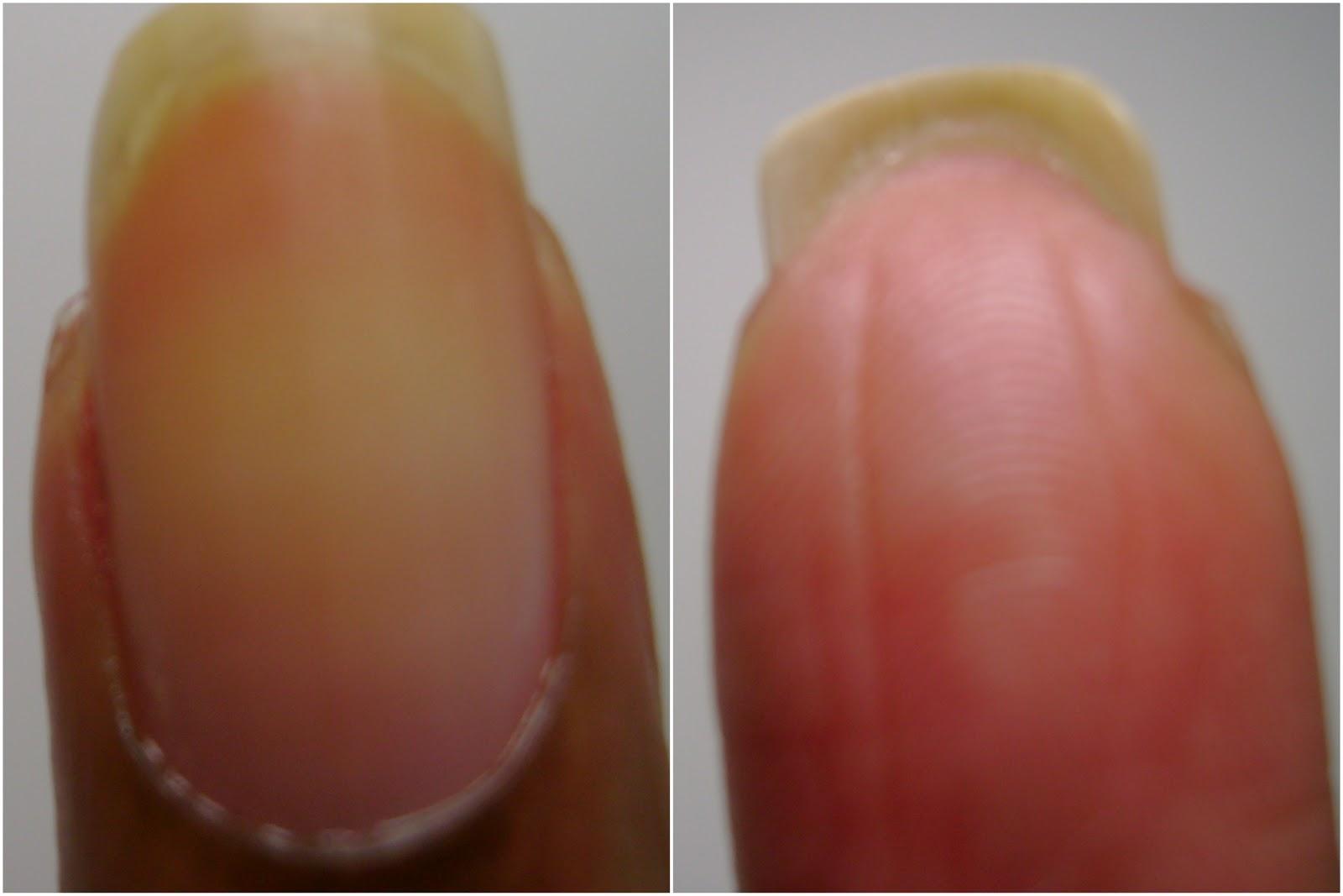Scarlet Fanny Fingernail Anatomy Nail Saving Tips