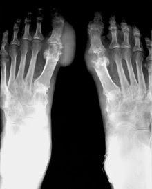 acido urico alto y cerveza gota en el pie pdf que medicamentos hay para el acido urico