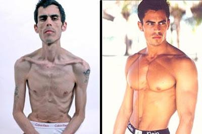 Model Pria Meninggal Karena Anoreksia