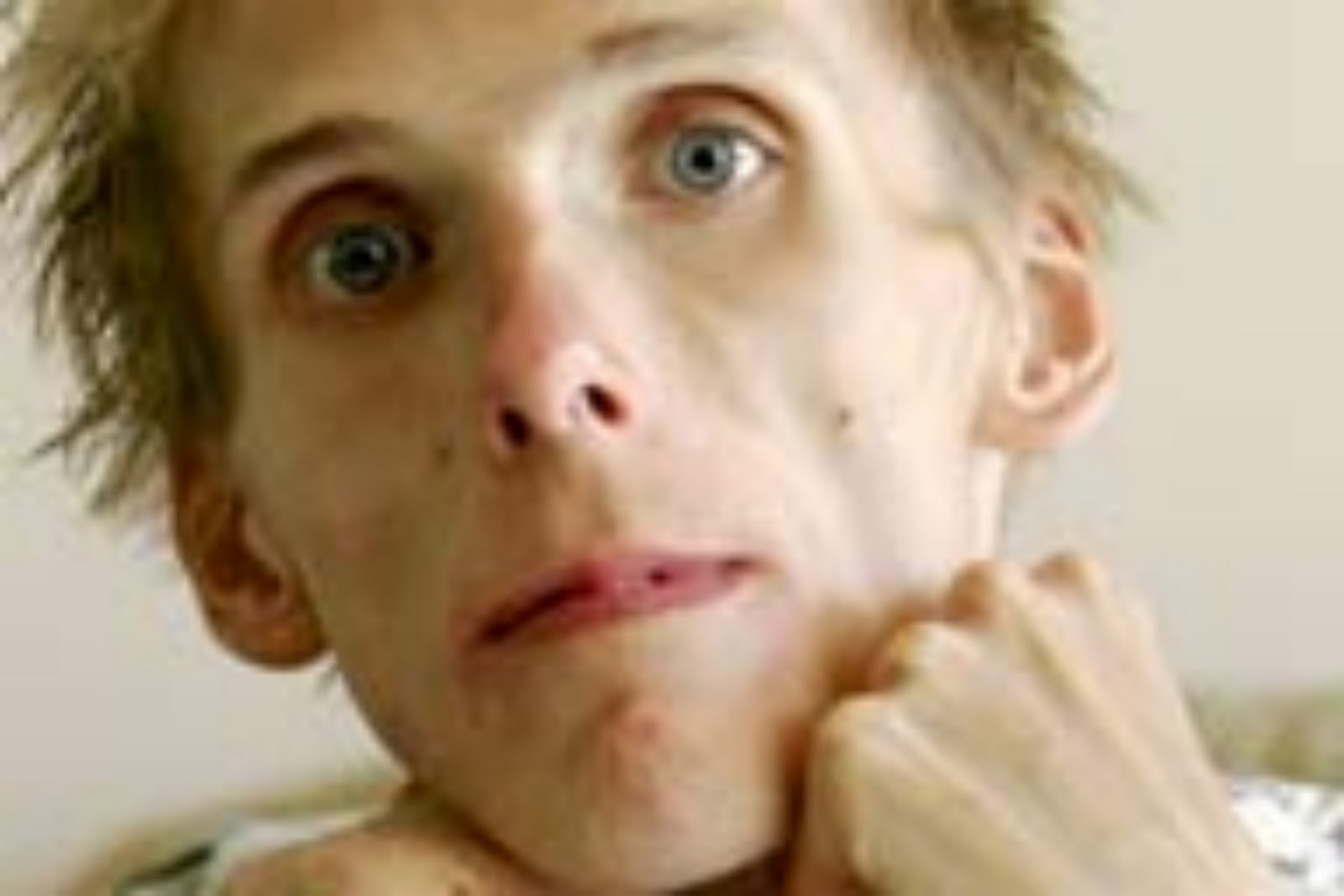 anorexic man face - photo #3