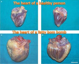 viagra premature ejeculation