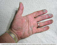 Hands coated with construction adhesive