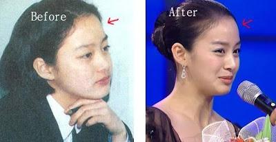 hey hey hey: [ Kim Tae heui ] Before & After Plastic Surgery
