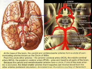 Stroke Caused By Bleeding In The Brain The other 15 percent of strokes happen when