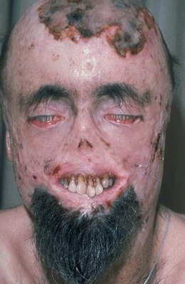(ภาพคนเป็นโรคผีดูดเลือดน่าตาเหมือนผีชัดๆฟันเหยินออกมานอกปาก)