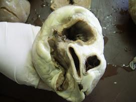 Muestra Anatomica