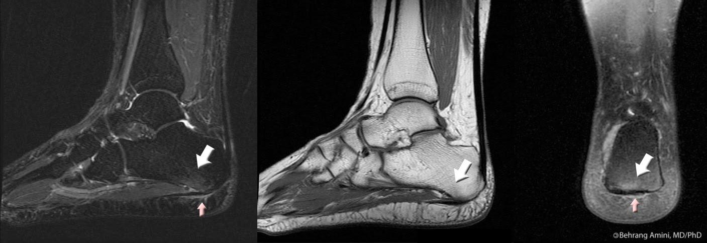 stressfractuur voet