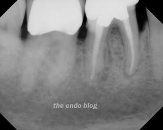 endodontic healing
