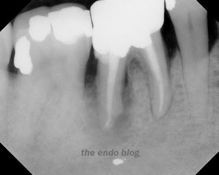 endodontic treatment details, contraindicat endodontics treatment, treatment planning for endodontic therapy