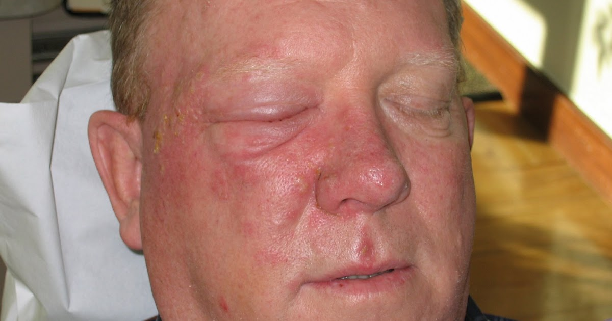 As you can see, he experienced the classic outbreak of herpes zoster (shingles) 1