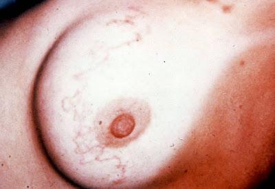 larva in the breast jpg 1080x810