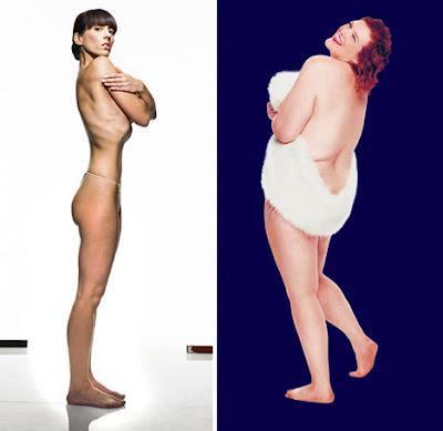EagleEye  Obese Vs Anorexic