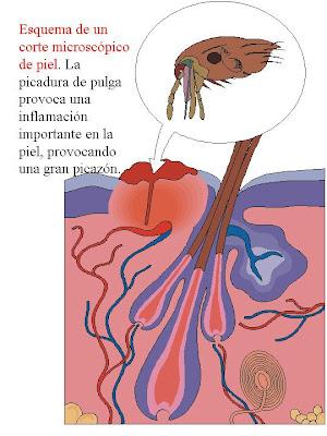 enfermedad picadura de pulga