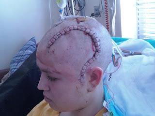 after surgery epilepsy masturbation Excessive