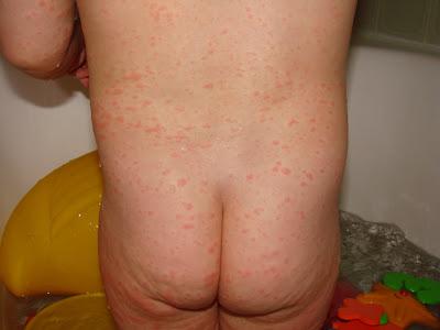Scarlet Fever In Pregnant Women 113