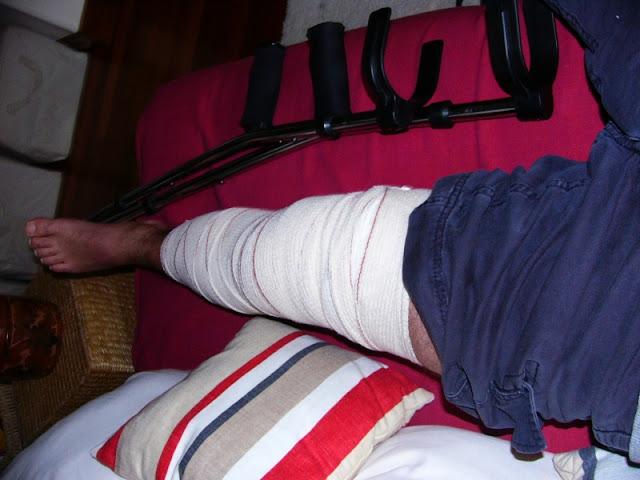 ligamento cruzado anterior, menisco, rotura