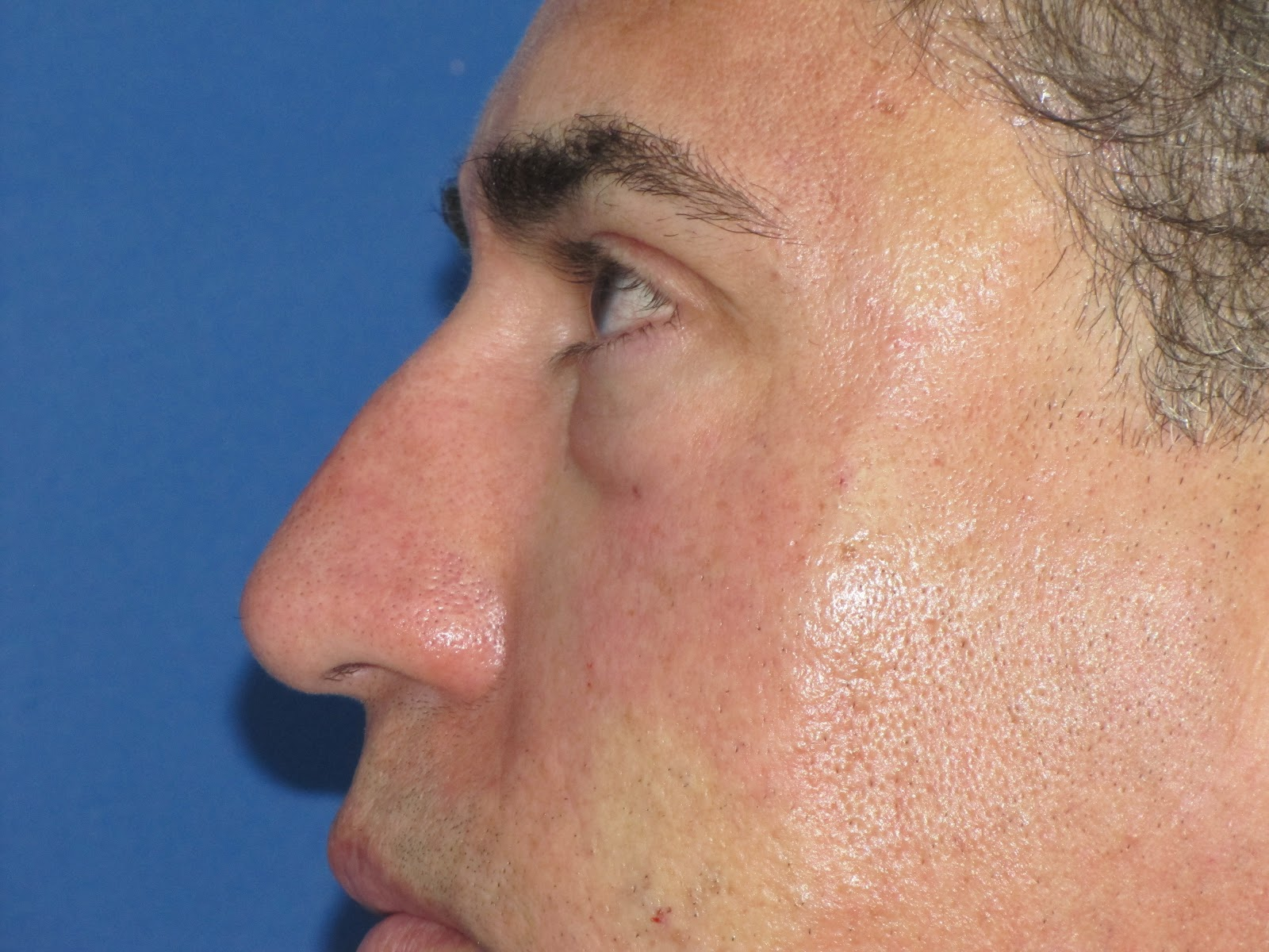 Non-Surgical Rhinoplasty (Nosejob): quick and painless