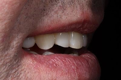 Lippenbändchen piercing abdruck