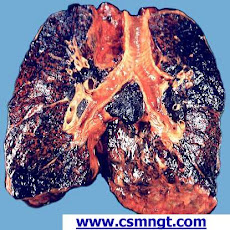 external image smokers%27l+ungs.jpg