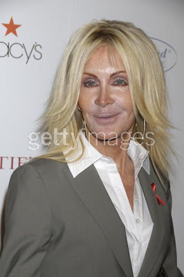 joan van ark face