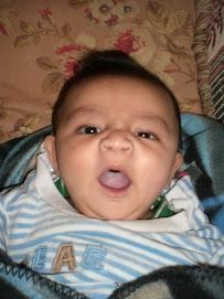 alex yawn