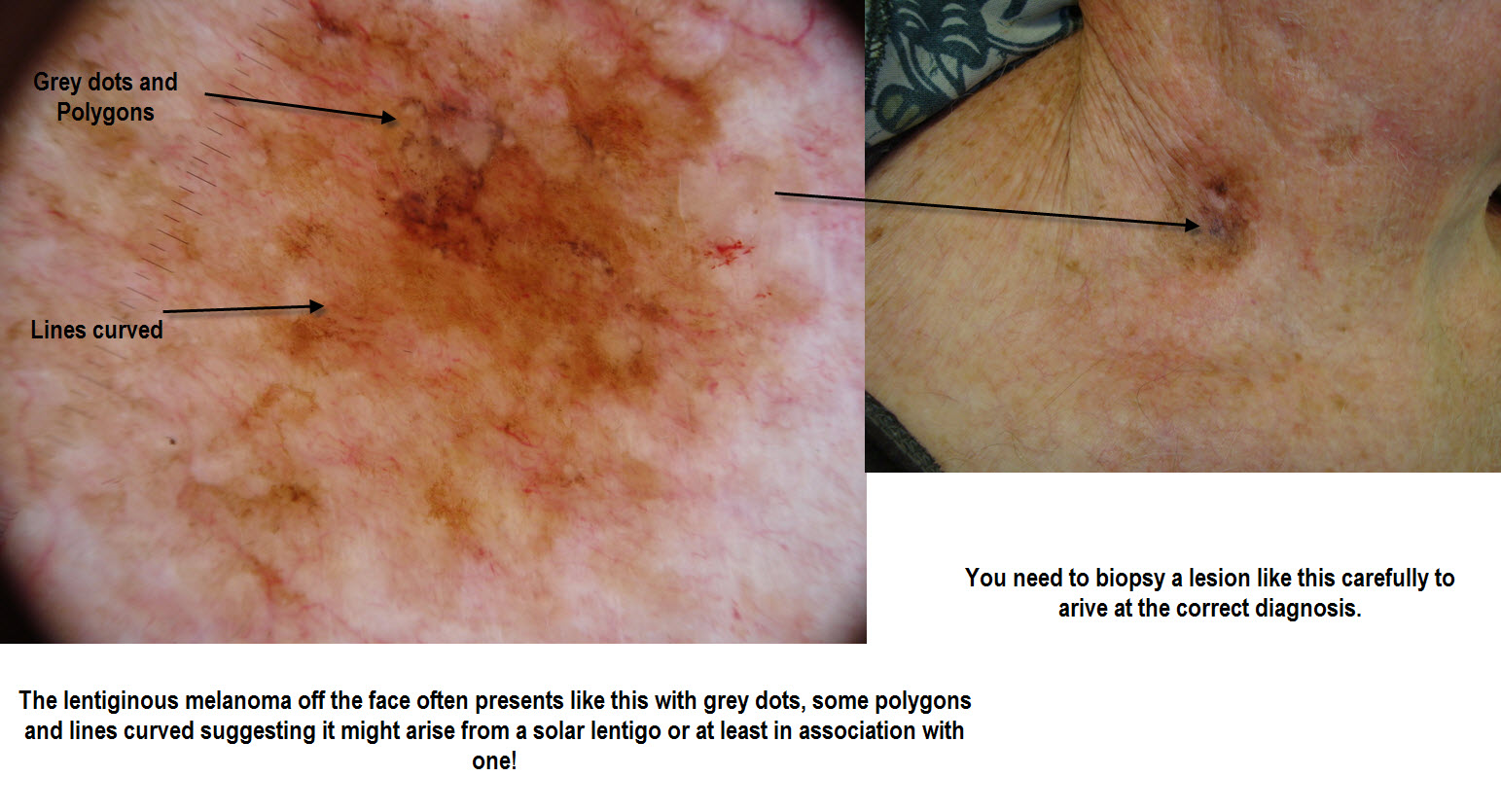 dermoscopy made simple  melanoma in situ mainly