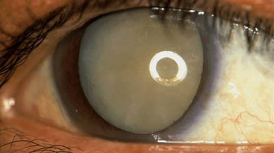 cum afectează praful vederea)