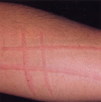 Types and Causes of Urticaria (Hives)