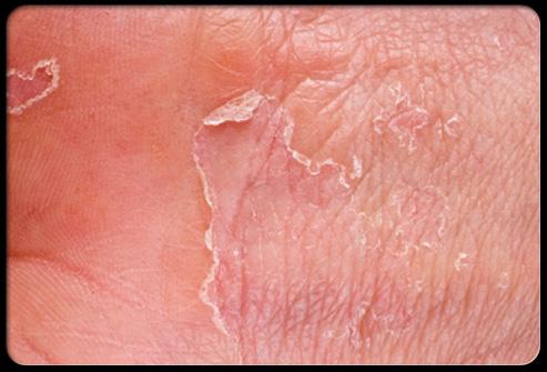 foot hard skin treatment