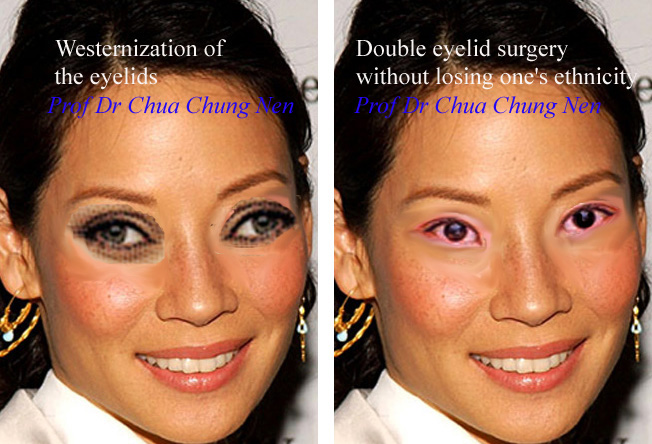 Eyelid Surgery by Prof Dr CN CHUA 蔡鐘能: Is Asian ... Bad Double Eyelid Surgery