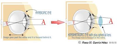 az áfonya helyreállíthatja-e a látást segítség a látásromláshoz