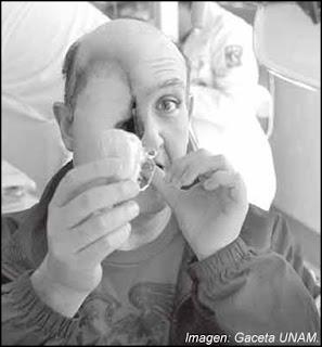 Paciente con prótesis bucal y facial