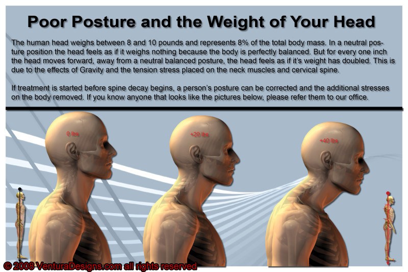 Bellevue Chiropractor | Active Spines Chiropractic Blog ...