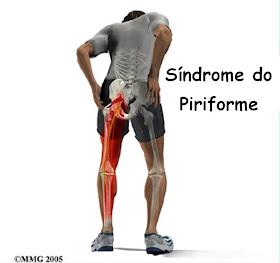 Atirando da dor para perna lado baixo nas esquerdo costas