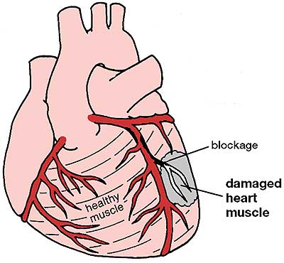 Understand Heart Attack (myocardial Infarction), Causes. Phone Contact Signs Of Stroke. Stand Here Signs. 4 Star Signs Of Stroke. Bath Signs. Busters Signs. Facial Weakness Signs Of Stroke. Bladder Cancer Signs. Lung Nodule Signs