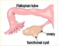 treatment-of-ovarian-cysts