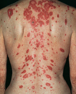 Skin Discoloration, Causes, Pictures of Abnormal Skin ...