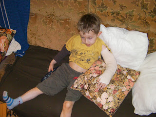 the patient, boy with a broken arm