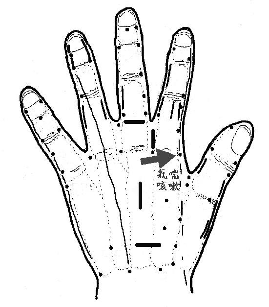 191行動訓練教材網: 氣喘與咳嗽時可以按摩緩解的手掌穴道