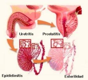 ¿Puedes contraer prostatitis por clamidia?
