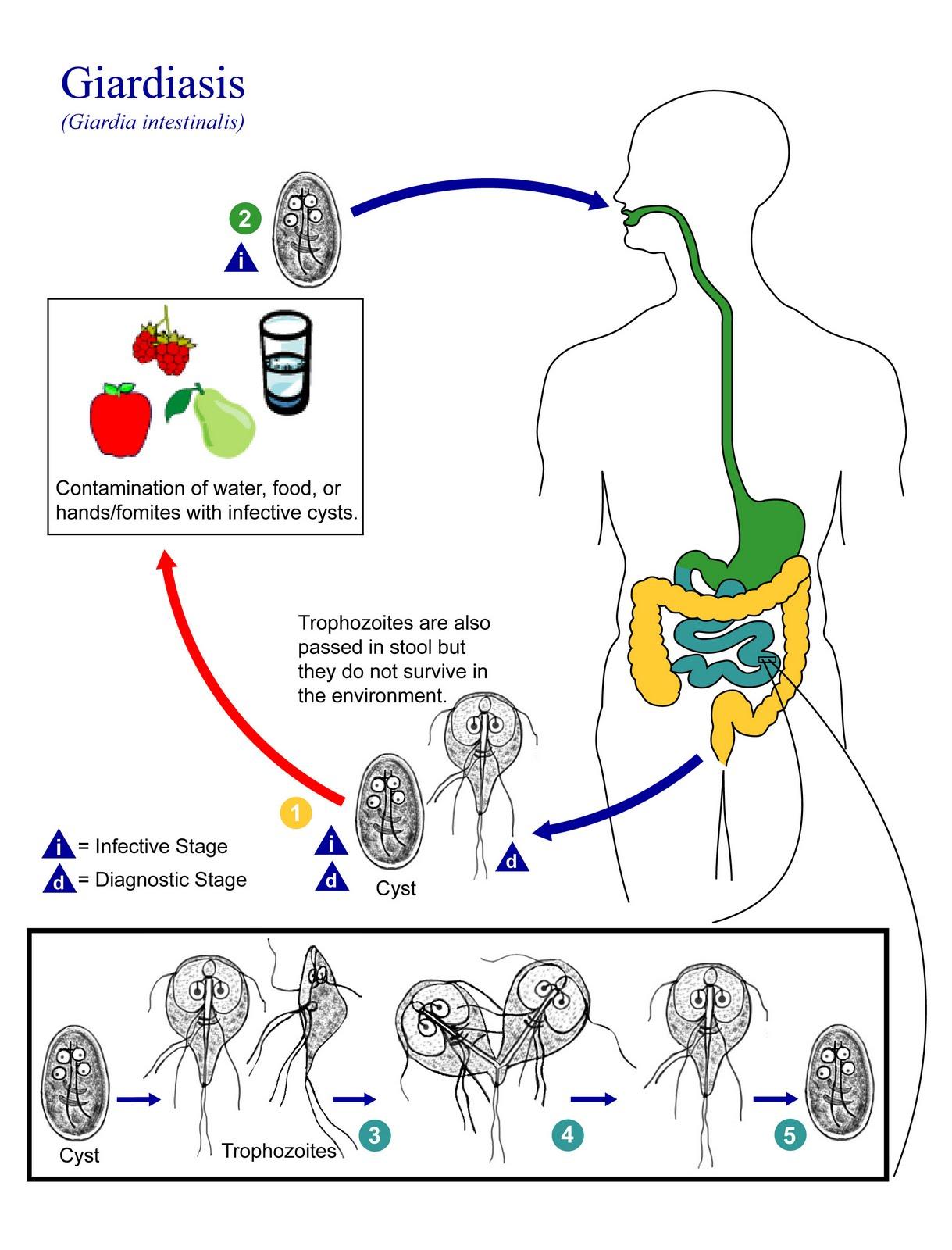 giardiasis fájdalom a jobb hypochondriumban