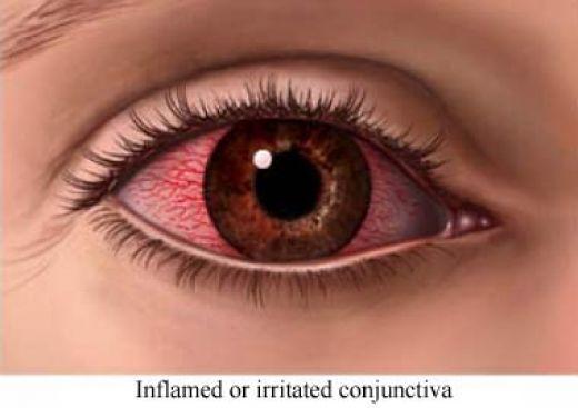 A síndrome do olho seco é um problema que afeta a muitas pessoas em graus  de severidade branda a severo, os casos mais leves geralmente o paciente é  ... c3c0da815f