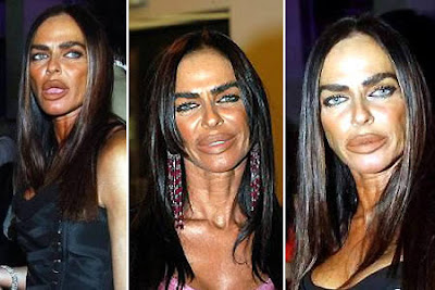 Weird and Funny: 10 Worst Plastic Surgery Disasters